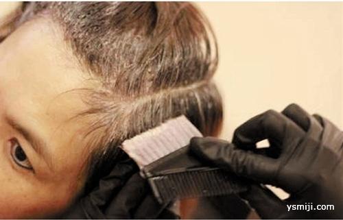 靠染发掩盖白发真的可取吗