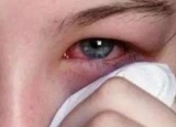 一男子眼睛痒,睫毛里竟爬出3条虫