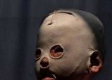 小男孩4年带着面罩出门,摘下后让人落泪